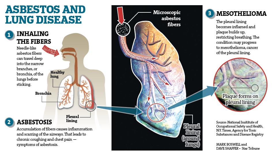 Diagram Of Breathing In Asbestos Fibers : Hummer law offices asbestos attorney lawsuit